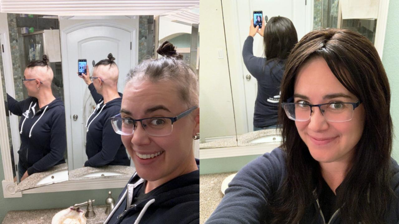 Kristin Aquilino shows selfies of scalp and with wig.